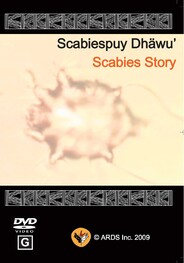Scabies-puy Dhäwu: Scabies Story DVD